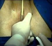 Embedded thumbnail for Cinta para Incontinencia Urinaria Anestesia Regional